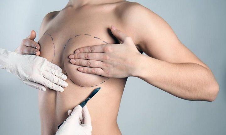 Врач рассказал, в каких случаях нужно удалить грудь